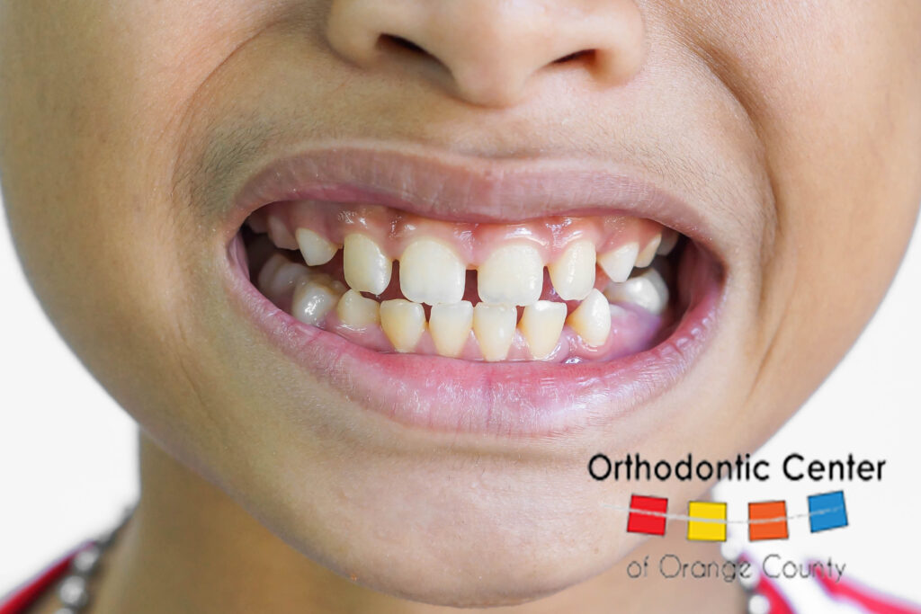 Child with Crooked Teeth Before Braces