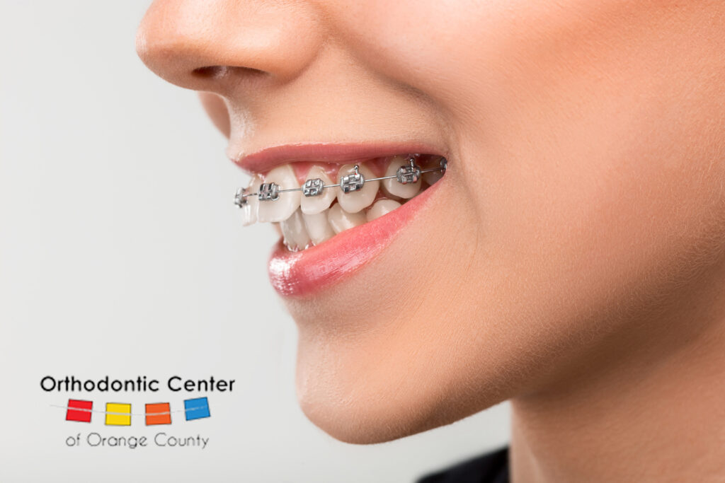 Woman Wearing Braces with Overbite